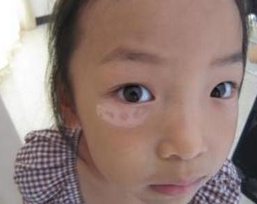 护理儿童白癜风方法有哪些